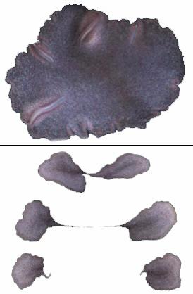 Trichoplax