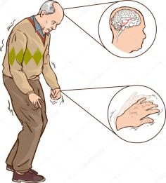 depositphotos_96524196-stock-illustration-old-man-with-parkinson-symptoms.jpg