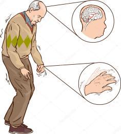 depositphotos_96524196-stock-illustration-old-man-with-parkinson-symptoms.jpg